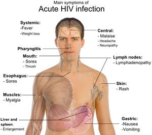 HIV Full Form - javatpoint